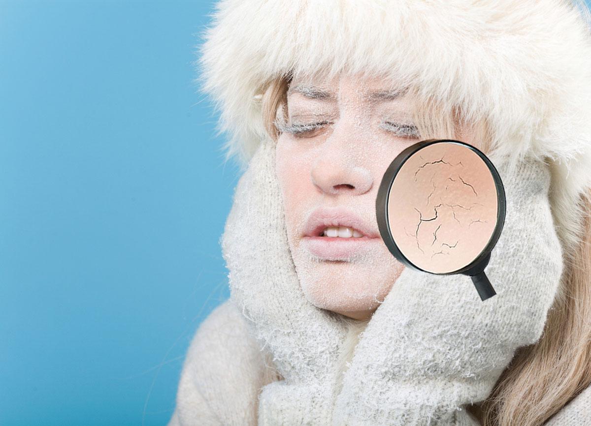 Salva la Tua pelle dal gelido inverno!